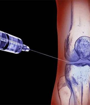 Stem cell injection