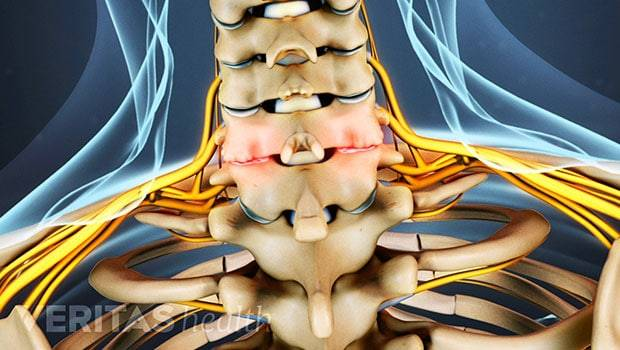 علائم آرتروز گردن