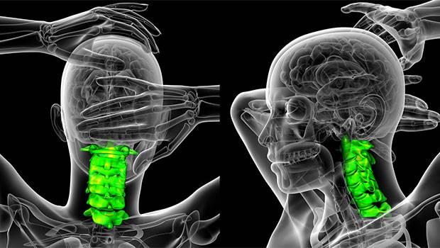 علت دیسک گردن