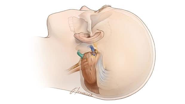 علت دردهای عصب سه قلو