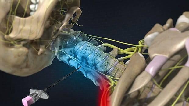 حرکات کششی برای عضلات پیریفورمیس