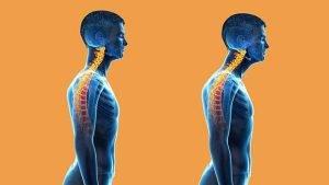 عوارض استفاده از تلفن همراه بر گردن