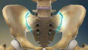 التهاب مفصل ساکروایلیاک
