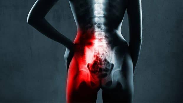 درمان ساکروایلیت یا التهاب مفصل ساکروایلیاک
